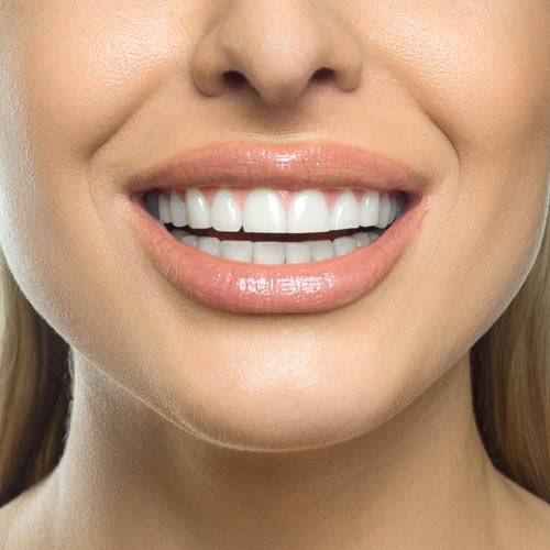 Cosmetic Dentistry in Lauderhill at Luxe Dental Your Best Dentist near you